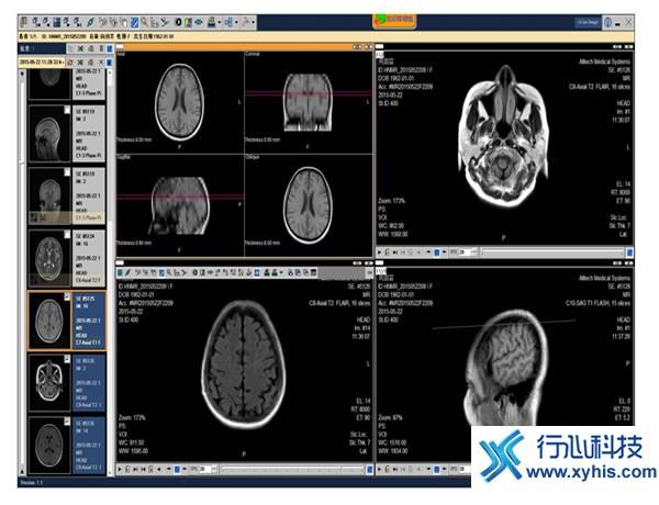 影像诊断.jpg